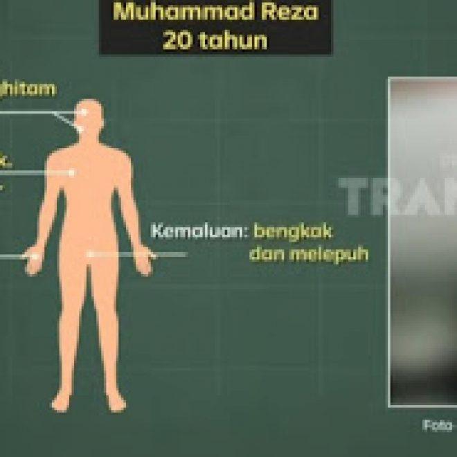 Komnas HAM Bungkam Polisi soal Jumlah Lubang Peluru yang Bersarang di Jenazah 6 Laskar FPI