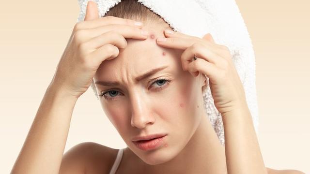 Perbedaan Jerawat Stres dengan Jerawat Menstruasi, Begini Cara Menanganinya
